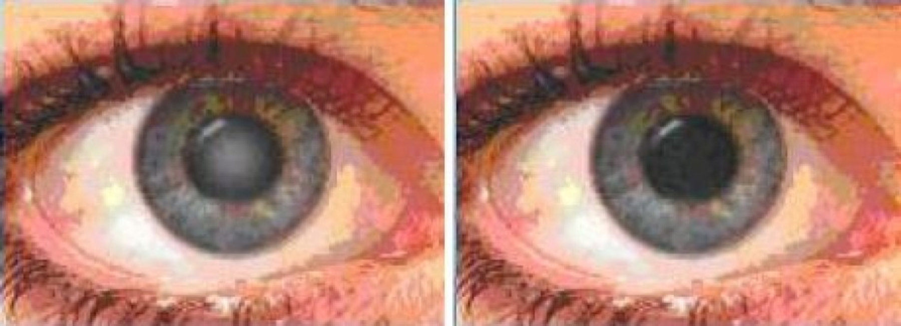 acute staar symptomen